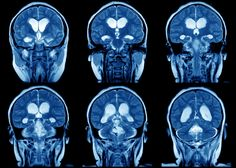 Neuroplasticity – or brain plasticity – is the ability of the brain to modify its connections or re-wire itself. Without this ability, any brain, not just the human brain, would be unable to develop from infancy through to adulthood or recover from brain injury.