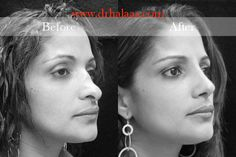 rhinoplasty surgeon in new york city Dr. Halaas is experienced with rhinoplasty surgery for nose jobs in nyc and helps nasal surgery patients. Rhinoplasty Surgery, Plastic Surgery, New York City, Health And Beauty, Facial, Hair Makeup, Nyc, Nose Jobs, Girl Blog