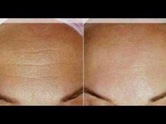 Médicos aterrados! Este truco elimina la flacidez del cuello muy fácil y arrugas - YouTube