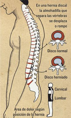 Hernia discal | Magazine | Infografía salud