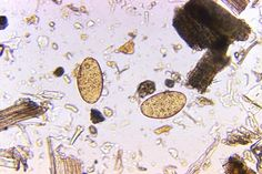Magnified 125X, this photomicrograph revealed the presence of two Fasciolopsis buski trematode eggs that were found in an unstained formalin-preserved stool sample. F. buski are the largest intestinal flukes found parasitizing human beings. These flukes inhabit Asia and the Indian subcontinent, especially in areas where humans raise pigs, and consume freshwater plants.