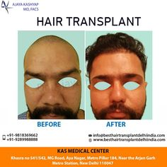 Looking for a hair transplant program with no stitches, incisions or pain? Dr. Ajaya Kashyap's cutting-edge, minimally invasive technique is the ultimate choice for natural-looking and permanent results. Contact us today inquire about hair transplant procedure cost in Delhi. Dr. Ajaya Kashyap Phone: +91-9289988888 Website: www.besthairtransplantdelhiindia.com #HairTransplant #FUE #FUT #HairLoss #PRP #Beard #Moustaches #Eyelash #Eyebrows #PlasticSurgery #realpatient #realself #Men #Women #EMI Eyelashes, Eyebrows, Hair Transplant Surgery, Metro Station, Moustaches, Medical Center, About Hair, Natural Looks, Plastic Surgery