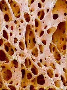Parte del tejido esponjoso del hueso vista con microscopio SEM. Fuente: