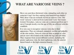 #varicose #vein treatment clinic in USA  http://www.usaveinclinics.com/