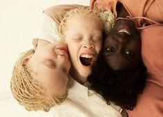 Vinicius Terranova, Albinism, Africans With Albinism