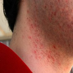How to Get Rid of Razor Burns? How to avoid razor burns naturally & fast. Remedies to cure razor burns. Razor burns treatment at home. Razor Burn Remedies, Rash On Neck, Rashes Remedies, Herbal Remedies, Health Remedies, Shaving Bumps, Razor Burns, Acne Causes, Beauty Tips