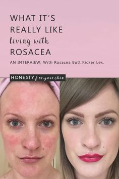 Want to know what it's really like living with rosacea? No doctors textbooks, no perfect 'you must do this answers', just the real honest truth? Then you absolutely must read this interview with Lex from TalontedLex.co.uk