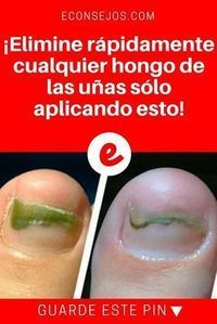 CLAVO DE OLOR para Hongos uñas pies y mas Foot Remedies, Health Remedies, Natural Remedies, Nail Fungus, Body Treatments, Cute Faces, Natural Medicine, Science, Good To Know