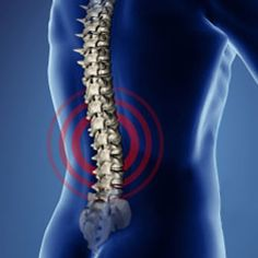 Do you have spinal stenosis?