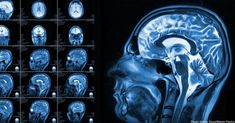 Using magnetic resonance imaging (MRI) in infants with older siblings with autism, researchers from around the country were able to correctly predict 80 percent of those infants who would later meet criteria for autism at two years of age.