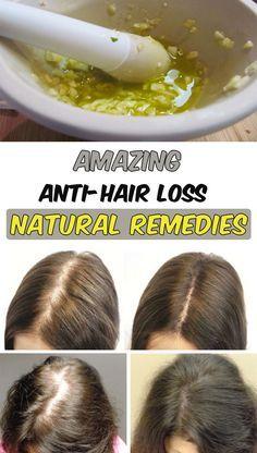 8 amazing anti-hair loss natural remedies