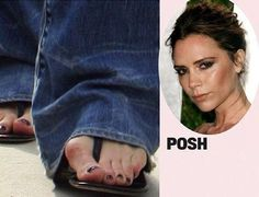These ugly toes belong to our Posh Spice-Victoria Beckham Celebrity Bodies, Celebrity Feet, Jennifer Aniston Feet, Posh Beckham, Foot Pictures, Bunion, Penelope Cruz, Famous Models, Gwyneth Paltrow