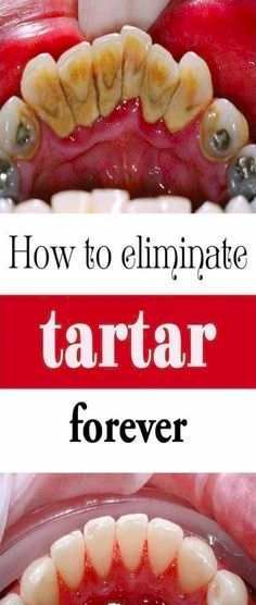 Remove Tartar At Home Effectively! – BS/U