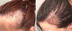 Ułóż dłoń w ten sposób i przytrzymaj. Szybko zauważysz zmiany, które wyjdą Ci na dobre!   5 Minut dla Zdrowia Hair Care, Health Fitness, Hair Beauty, Hair Styles, Womens Fashion, Fashion Tips, Natural Treatments, Diet, Fotografia