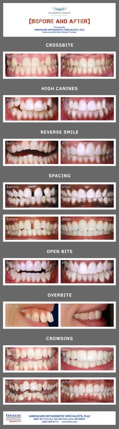 Before and after photos of 6 Month Smiles users. Before and after photos of 6 Month Smiles users. Teeth Braces Cost, Braces Tips, Braces Before And After, After Braces, 6 Month Braces, Braces Colors, Crooked Teeth, Brace Face, Dental Art