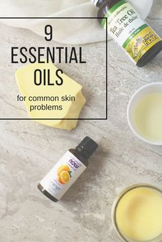 9 Essential Oils for Common Skin Problems- learn about the healing essential oils for skin and how to use them! Essential Oils For Skin, Essential Oil Uses, Healing Oils, Aromatherapy Oils, Natural Acne Treatment, Acne Treatments, Esential Oils, Natural Beauty Recipes, Young Living Oils