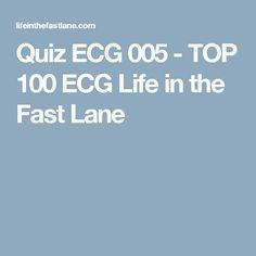 Quiz ECG 005 - TOP 100 ECG Life in the Fast Lane