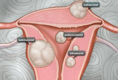 Types of Fibroids  Intramural fibroids, the most common, grow in the wall of the uterus and can make it feel bigger.  Subserosal fibroids grow on the outside of the uterus. As they grow larger, they can cause pain due to their size or pressure put on nearby organs.  Submucosal fibroids grow just underneath the uterine lining and can crowd into the uterus cavity and lead to heavy bleeding and other more serious complications.  Pedunculated fibroids grow on small stalks inside or outside the…