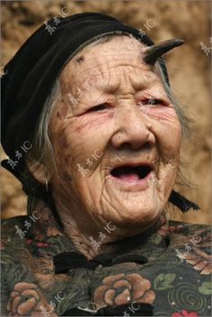 Zhang Ruifang, a 100-year old woman, from China's Henan Province, has a strange horn coming out of the left side of her forehead.