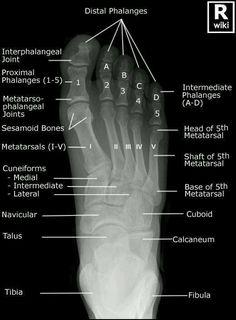 Radiografía A-P de pie.  Unidad Especializada en Ortopedia y Traumatologia www.unidadortopedia.com PBX: 6923370 Bogotá- Colombia