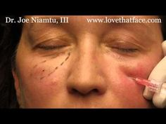 Look younger in 5 minutes. Joe Niamtu, III, cosmetic facial surgeon from Richmond, Virginia demonstrates how small amounts of cheek filler can take years. Botox Injection Sites, Relleno Facial, Cheek Fillers, Diy Beauty Treatments, Facial Rejuvenation, 5 Ml, Look Younger, Cosmetology, Anatomy