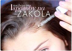 Alina Rose Makeup Blog: Zakola: jak się ich pozbyć i zagęścić linię włosów. Wcierki, olejki, sposoby.