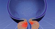 доброкачественная гиперплазия предстательной железы дгпж
