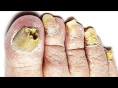 Starke Hausmittel gegen Nagelpilz - YouTube Acrylic Nails At Home, Nail Fungus, Home Remedies, Most Beautiful Pictures, Told You So, Peach, About Me Blog, Youtube, Diy Kleidung