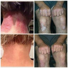 Look at these amazing results from using SOOTHE by Rodan + Fields. Every product these doctors have to offer come with a 60 day empty bottle money back guarantee, so its definitely worth a try. If you or someone you know have eczema, psoriasis, sensitive skin, rosacea, or irritated skin please pass this information along. www.mroby.myrandf.com #sensitiveskin #rosacea #eczema