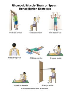 Mid Back Pain Rehabilitation Exercises | Car Accident Doctor