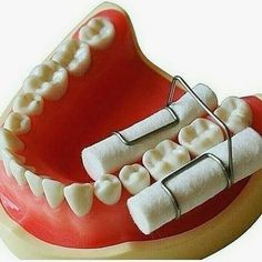 would you use it #dentistry #odonto #dentist #dentista #dental #dentistrylife #dentalassistant #teeth #dentalsurgery #odontolove #hygiene #dentalschool #dentalhygienist #odontologia #dentes #instadentist #dentalhumor #anatomy #dentalgram #instateeth #dentalnurse #dentalphotogaphy #odontology #dentalgram #dentalstudent #compositerestoration #fillings