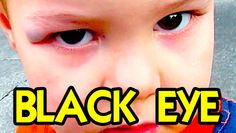 TODDLER'S FIRST BLACK EYE! | TheFunnyrats #Vlog