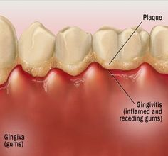 Calculus on teeth causes gingivitis. If you have any questions or concerns, do not hesitate to call! http://www.toptemplecitydentist.com