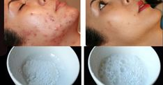 remove-acne-with-this-amazing-recipe