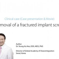 Removal of a fractured implant screw Author Dr. Young-Ku Heo, DDS, MDS, PhD Director of Global Academy of Osseointegration Seoul, Korea Clinical case (Case. http://slidehot.com/resources/clinical-case-sr-kit-with-movie.23937/