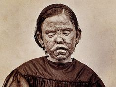 "This 1867 photograph shows a woman with a form of leprosy known at the time as ""elephantiasis des Grecs."" It first appeared in a French medical text published in ""Clinique photographique de l'hospital Saint-Louis. Leprosy Pictures, Fantasy Makeup, Fantasy Art, Creepy Vintage, Medical History, History Education, Horror Fiction, Film Genres, Emergency Medicine"