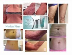 Check out all the different areas that Nerium Firm can help you look better - just in time for summer!  This product has only been on the market for a month so look at 4 weeks or less of results!  What are you waiting for???  Order today at http://debmark.arealbreakthrough.com