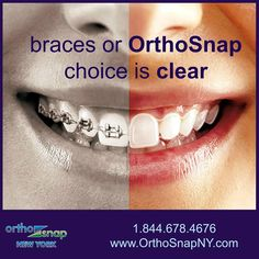 Correct Your Teeth Without Braces | OrthoSnap teeth aligners - comfortable, removable, invisible, and as effective as traditional braces | #Manhattan and #Brooklyn | http://www.OrthoSnapNY.com/ | #NewYork #OrthoSnap #OrthoSnapNewYork #NYC #ClearBraces  #TeethAligners #AdultBraces #TeenBraces #ClearAligners #InvisalignAlternative #BetterThanInvisalign #StraightTeeth #TeethStraighteningWithoutBraces #teeth #braces #smile #CrookedTeeth #PerfectTeeth #UnevenTeeth #TeethGap #BeautifulSmile