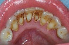 Így távolíthatjuk el a fogkövet, anélkül, hogy fogorvoshoz mennénk!