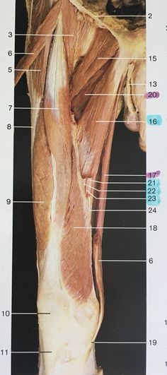 Right side and ventral aspect of thigh muscles (sartorius removed Leg Anatomy, Gross Anatomy, Human Body Anatomy, Muscle Anatomy, Tensor Fasciae Latae, Nursing Information, Muscular System, Thigh Muscles, Academic Art