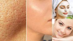 Cada pessoa tem um tipo de pele diferente. Mais seca, mais oleosa, com muita acne ou poros bastante abertos. Cada um destes problemas pode ser ocasionado por diferentes motivos, desde fatores genéticos, desequilíbrios hormonais ou a falta de cuidado no dia a dia. Se o seu problema está relacionado ao poros abertos demais, que deixam uma aparência de casca de laranja à pele do seu rosto, aprenda duas receitas naturais que podem ajudar: uma base e um fortificante. Base natural para a pele…