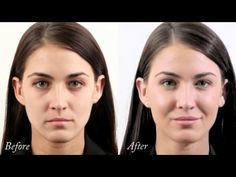 Monica's Dermal Filler treatment to cheeks, lips, temples, forehead - YouTube