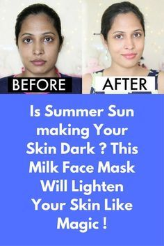 """Is Summer Sun making Your Skin Dark ? This Milk Face Mask Will Lighten Your Skin Like Magic ! As Indians, we are constantly worried about our skin getting dark and uneven patches from sun exposure, instead of opting for the expensive de-tan or fairness facials, you could try using some natural methods to get rid of the tan. Ingredients required : 1) 1 tablespoon Gram flour """"Besan"""" 2) 1 tablespoon Milk Powder 3) …"""