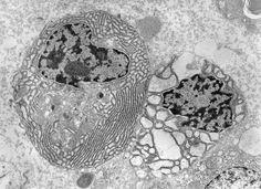 células reais Microscópio eletrônico - Pesquisa Google Gabriel, Microscopic Images, Punch Bowls, Archangel Gabriel