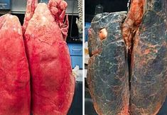 8 természetes és hatékony módja, hogy egy életre megszabadulj a dohányzástól