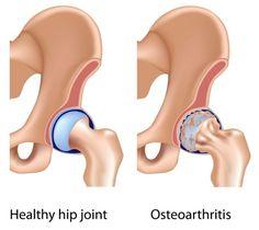 Connexin43 Gap Junctions Influences Osteoblast Signalling and Enhances Osteoarthritis Gene Expression @http://orthopedics.imedpub.com/connexin43-gap-junctions-influences-osteoblast-signalling-and-enhances-osteoarthritis-gene-expression.php?aid=9825