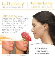 Sorry We Missed You!  Couldn't make it to our Ultherapy Event last night? You asked, we answered!   Sonterra Laser Med Spa is extending one night only specials THROUGH SATURDAY APRIL 25th! Save 10% on any treatment + receive a free eye treatment ($500 value) *must receive consultation prior to receiving treatment.  CALL 210-545-3327 FOR MORE INFORMATION.