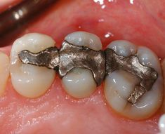 Study says: Cell phone radiation and mercury in your teeth cause significant health problems