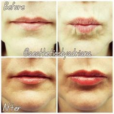 #Repost from @aestheticsbyadriana  For subtle beautiful lip augmentation nobody does it better than Adriana. Schedule a visit with her at our Fullerton location!  If you are looking for a filler that adds SUBTLE  volume to the lips and softens the appearance of the lip wrinkles then JUVEDERM VOLBELLA XC is the perfect filler for you . -  JUVEDERM VOLBELLA XC has been customized with a lower HA concentration than the rest of Juvederm products while still providing the long-lasting results…
