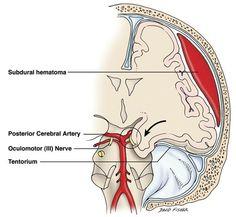 cerebral hematoma herniation